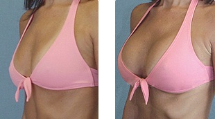 augmentation cos Breast